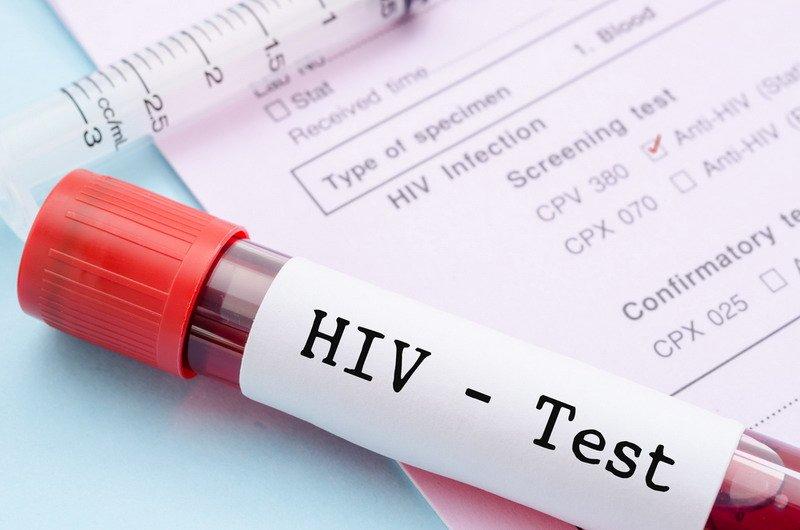 https: img.okezone.com content 2020 08 05 481 2257591 bahaya-kena-penyakit-gonore-di-usia-muda-bisa-berujung-hiv-aids-LcFQBk5vKy.jpg