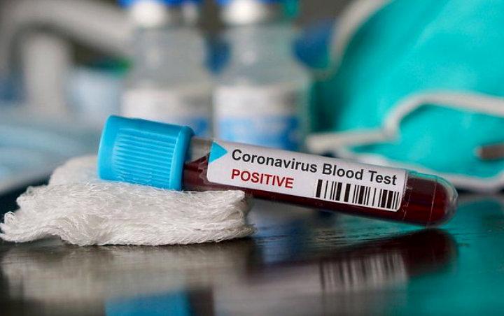 Hebatnya, Hoax Virus Corona Meninggal 800 Orang